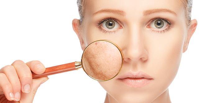 Acne Awareness