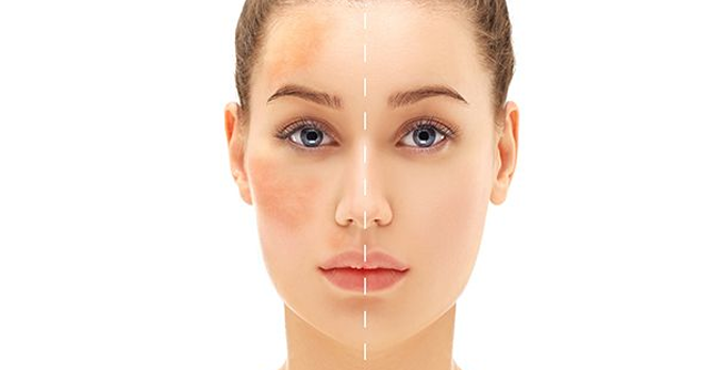 "How To Reduce The Look Of Melasma Or ""Pregnancy Mask"""